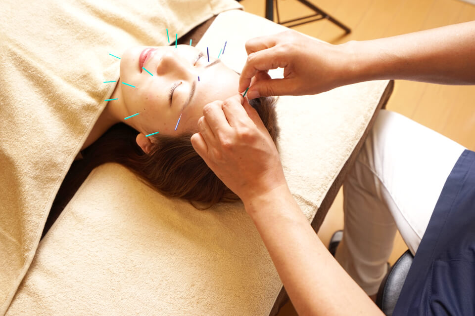 美容鍼サロン Shimogamo 選ばれる5つの理由